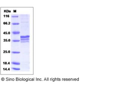 Human MRPL44 Protein (His Tag)