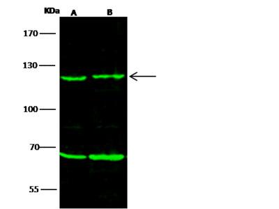 PMS2 Antibody, Rabbit PAb, Antigen Affinity Purified