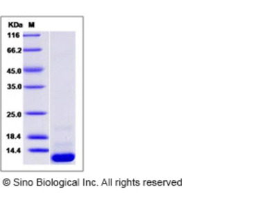 Human CCL20 / MIP-3 alpha Protein (His Tag)