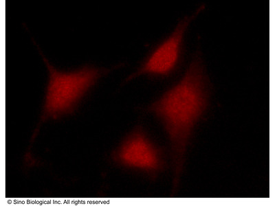 CARM1 Antibody, Rabbit PAb, Antigen Affinity Purified