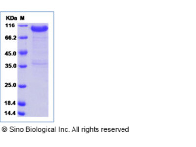 Human LRRC15 Protein (Fc Tag)