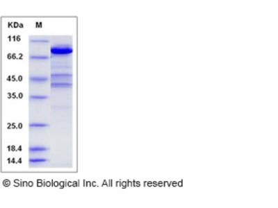 Human EZR / VIL2 / Ezrin Protein (His Tag)