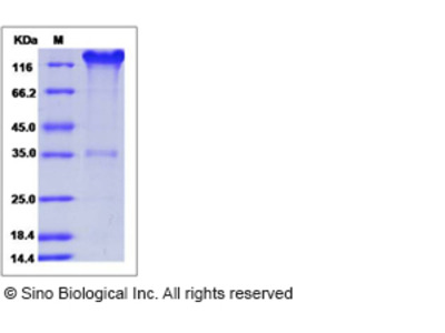 Mouse SELP / selectin P / P-selectin Protein (Fc Tag)