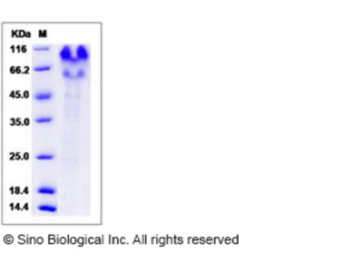 Human PSGL-1 / CD162 / SELPLG Protein (His Tag)