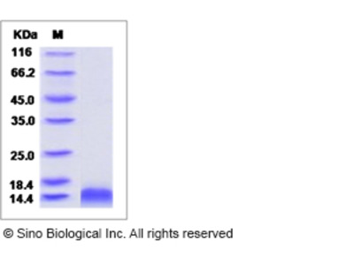 Rat CCL4 / MIP1B Protein(His Tag)