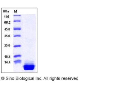 Human S100A10 Protein (His Tag)