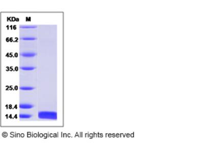 Human FABP3 / H-FABP / M-FABP Protein
