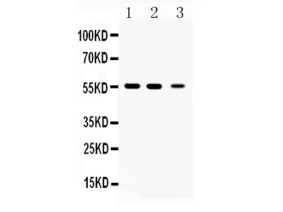 Anti-Beta Tubulin/TUBB Picoband Antibody