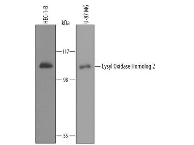 Lysyl Oxidase Homolog 2 /LOXL2 Antibody