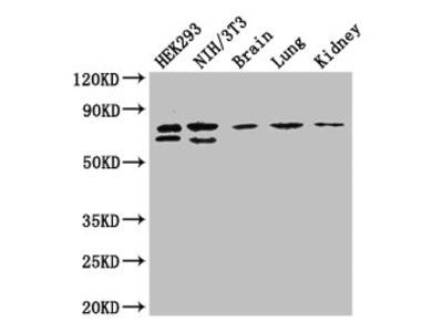 NUP85 Polyclonal Antibody