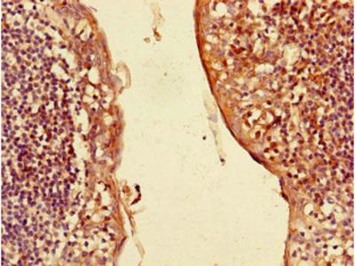 CXCL3 Polyclonal Antibody