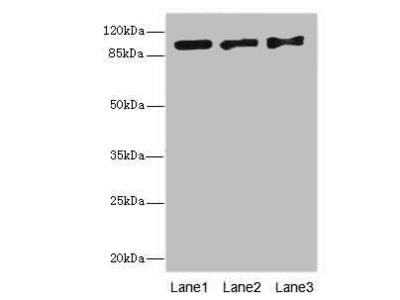 EXO1 Polyclonal Antibody