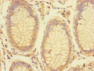 LRRC61 Polyclonal Antibody