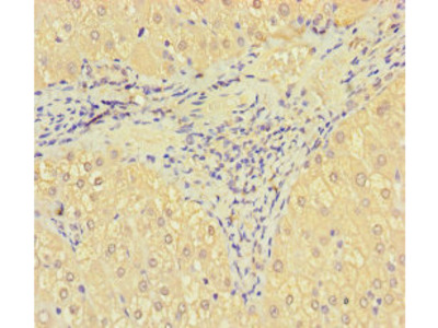 SRPK3 Polyclonal Antibody
