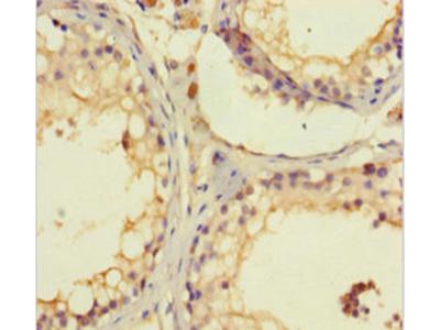 C1orf111 Polyclonal Antibody