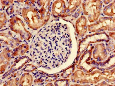 SNRPD1 Polyclonal Antibody