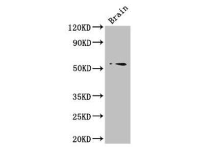 TRIM43 Polyclonal Antibody