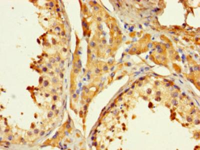 PAGE1 Polyclonal Antibody