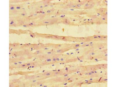 COL4A1 Polyclonal Antibody