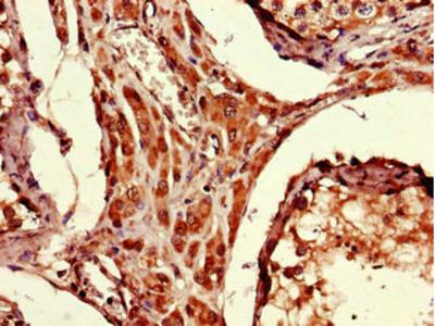 ARRDC1-AS1 Polyclonal Antibody