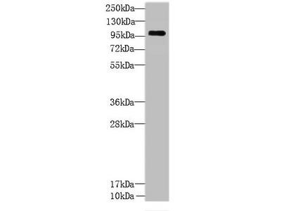 CCDC103 Polyclonal Antibody