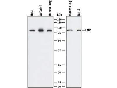 Ezrin Antibody