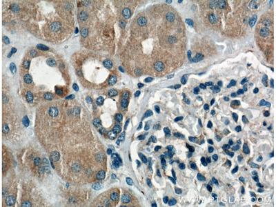 Chk1 Polyclonal Antibody