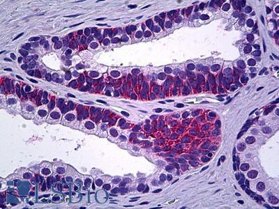 PPP3CC / CALNA3 Antibody