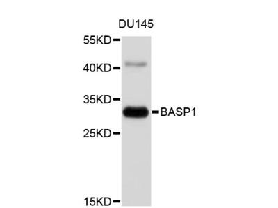 BASP1 Polyclonal Antibody