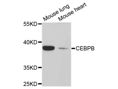 C/EBP Beta / CEBPB Antibody