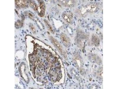 APOA1 / Apolipoprotein A 1 Monoclonal Antibody