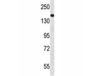 NPC1 Antibody