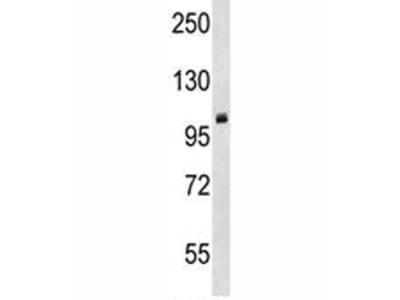 PRMT10 Antibody