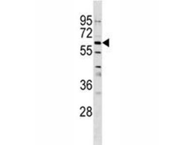 GPNMB Antibody