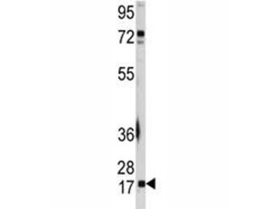UBC9 Antibody (UBE2I)