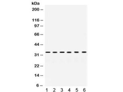 SULT2A1 Antibody