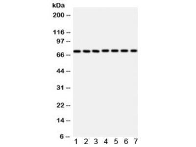 SDHA Antibody