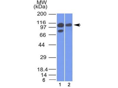 Alpha Catenin Antibody (Mouse Monoclonal)