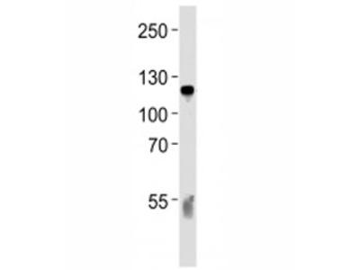 Complement C6 Antibody