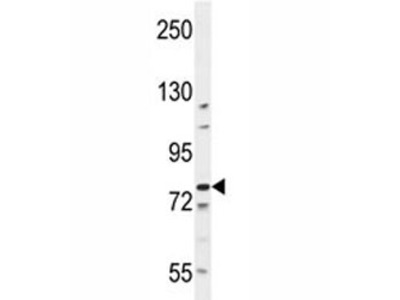 BCL11B Antibody
