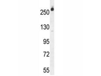 CAD Protein Antibody