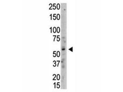 PRMT3 Antibody