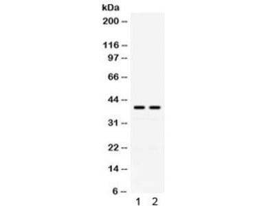 anti adenosine deaminase antibody products biocompare com