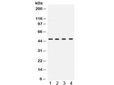 UBE2Q2 Antibody