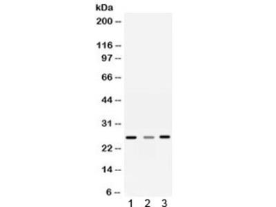 Sorcin Antibody / SRI