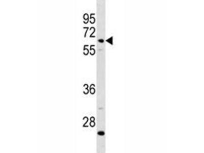Complement C8 beta Antibody (C8B)