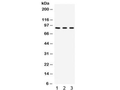 Complement Factor B Antibody / CFB