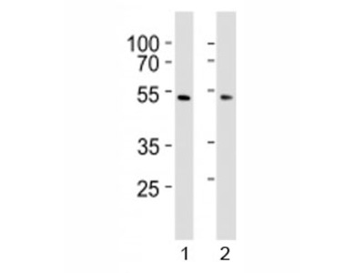 SUV39H2 Antibody (KMT1B)