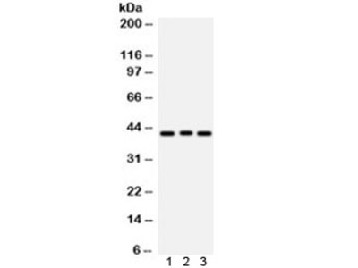 Ataxin 3 Antibody / ATXN3
