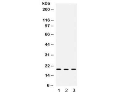 Cofilin 2 Antibody / CFL2